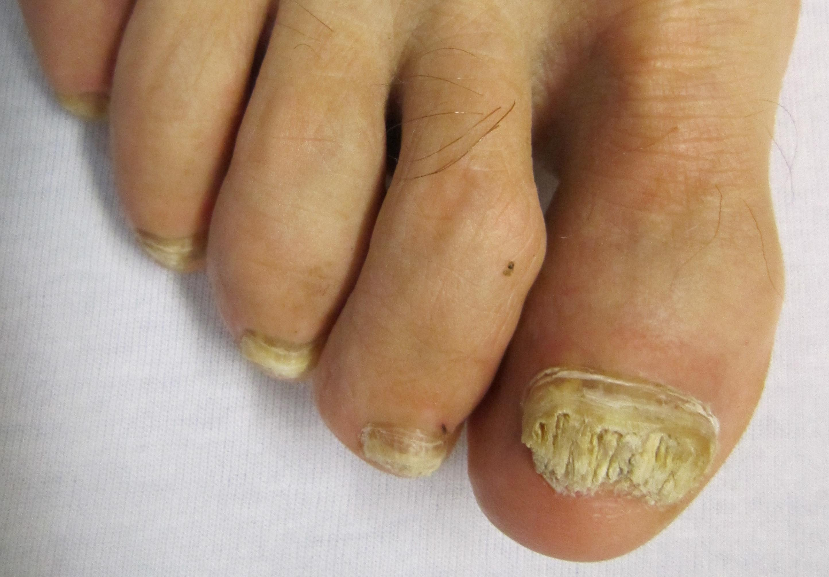 Fungal nails - thick yellow ugly toenails - Bruyere Foot Specialists