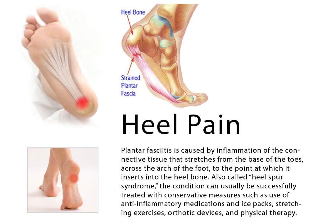 705511902df Heel Pain - Plantar Fasciitis - Bruyere Foot Specialists